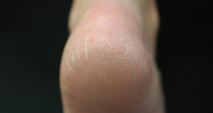 Simple Remedies for Cracked Heel