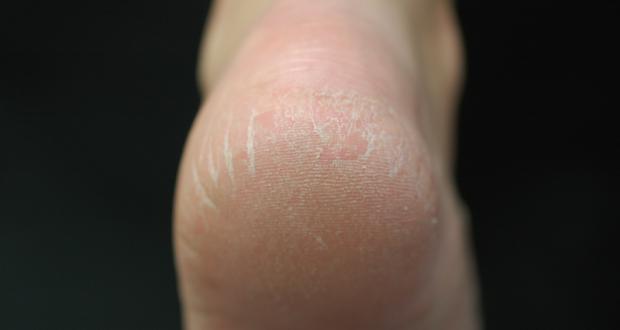 simple-remedies-for-cracked-heel